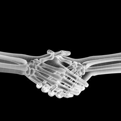 Twee handen schudden elkaar op röntgenfoto